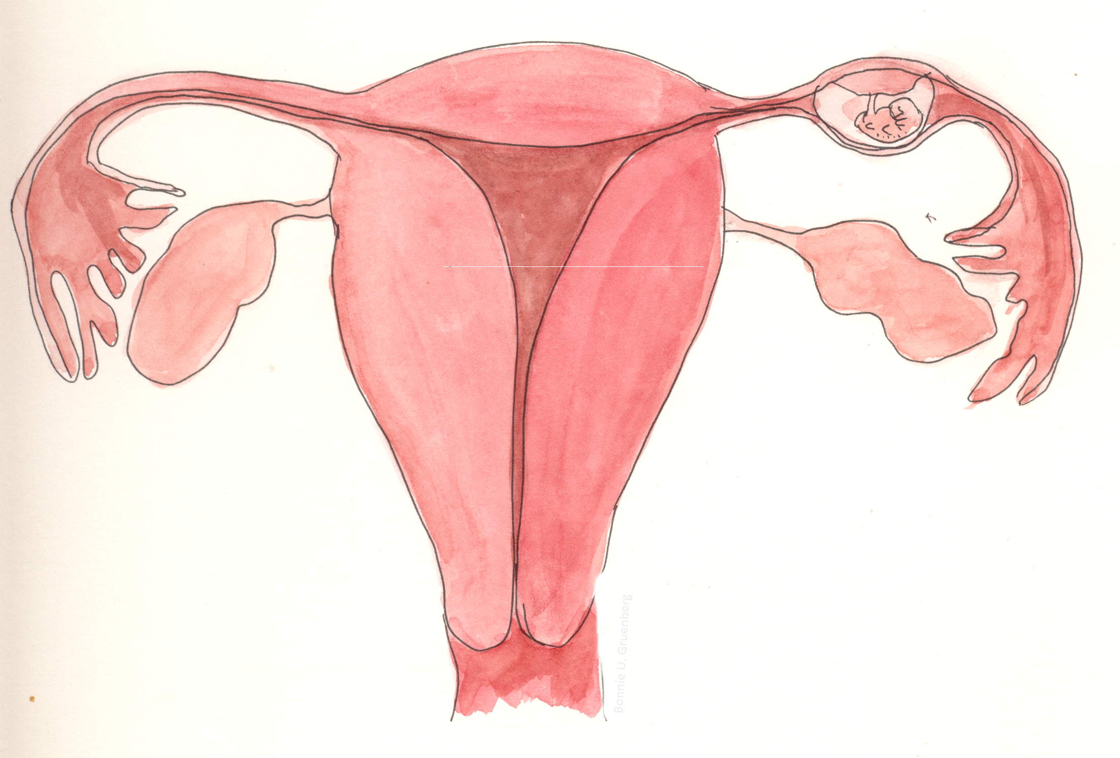 How To Diagnose An Ectopic Pregnancy