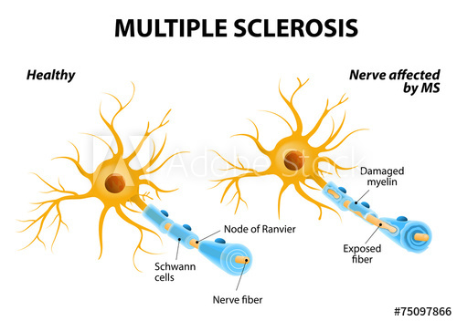 Why Are Some People More Susceptible To Multiple Sclerosis?